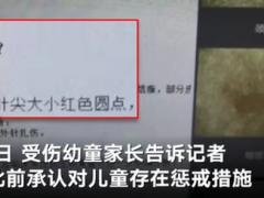 深圳一幼儿园4岁幼童疑遭扎针,警方已经介入